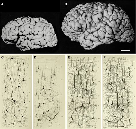 Frontiers | The Evolution of the Brain, the Human Nature